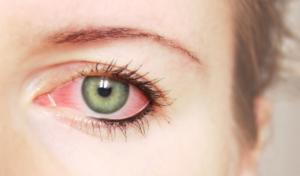 Почему от воды краснеют глаза